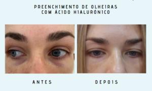 antes e depois 4